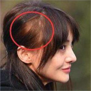 女性薄毛、ほぼ全員必ず治ると話題!