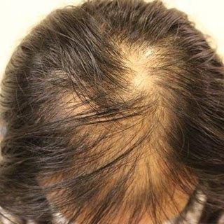 女性の薄毛は全員◯◯が足りないと判明