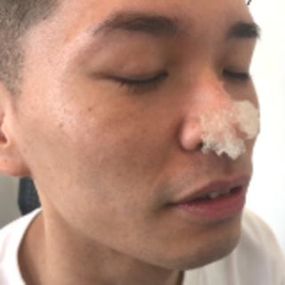 頑固な夫の毛穴から排出された4センチの角栓…息子が暴露し話題