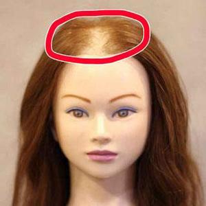 女性の薄毛は全員◯◯が足りないと判明!実はアレで簡単にフサフサに…
