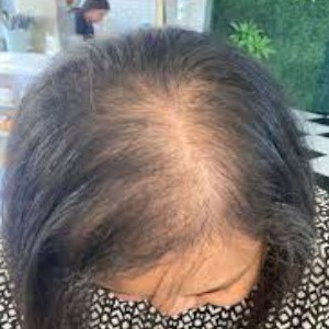 髪の抜け毛は要注意!「女性薄毛はあるモノが足りないから」専門家の妻が暴露!
